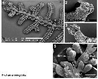 Image of Frullania congesta